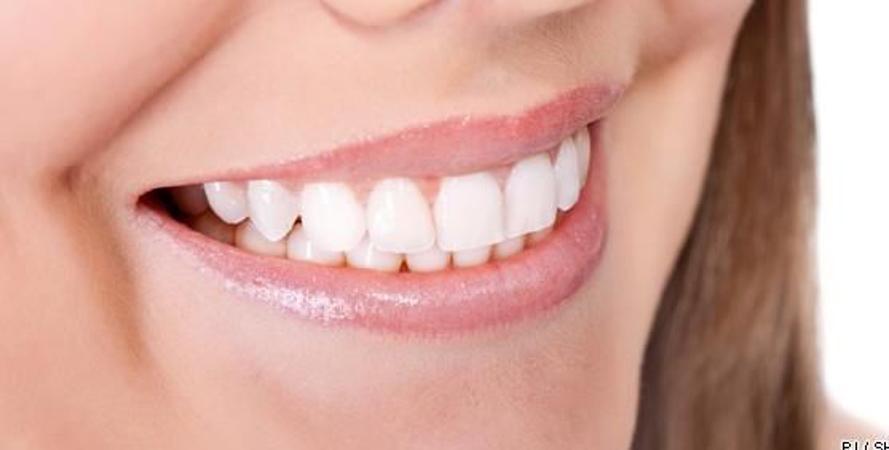 Top Devis Dentaire  Paris